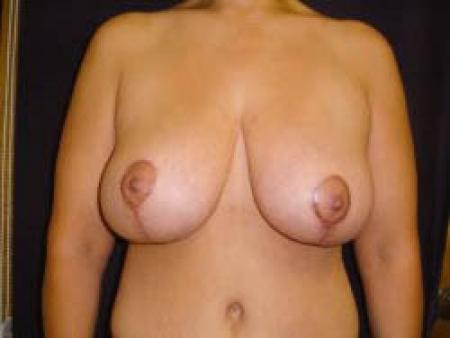 Breast Augmentation with Lift - Patient 9 -  After Image 1