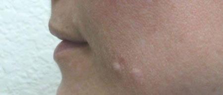 Lip Augmentation - Patient 1 - Before Image 1