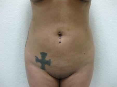 Brazilian Butt Lift - Patient 3 -  After Image 2
