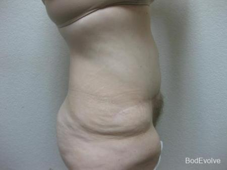 Patient 4 - Cosmetic Surgery After Massive Weight Loss -  After Image 5