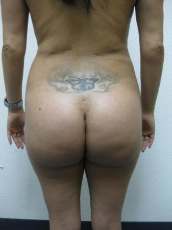 Brazilian Butt Lift - Patient 3 -  After Image 1