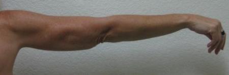 Arm Lift Surgery - Patient 3 -  After Image 4