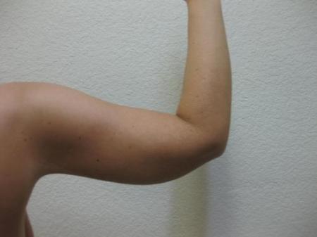 Arm Lift Surgery - Patient 1 -  After Image 3