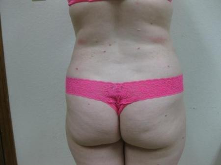 Liposuction - Patient 5 -  After Image 6