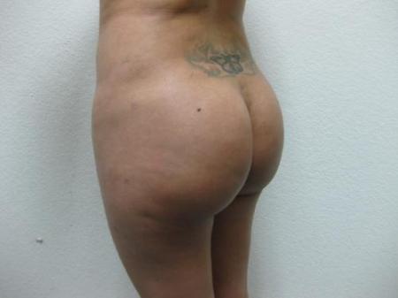 Brazilian Butt Lift - Patient 3 -  After Image 4