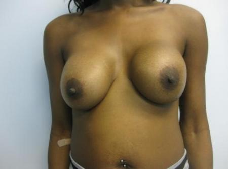 Breast Implant Revision - Before Image 1