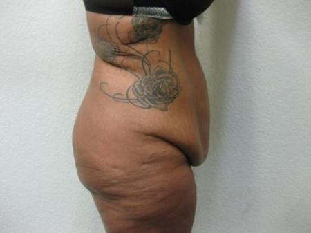Tummy Tuck - Patient 3 - Before Image 5