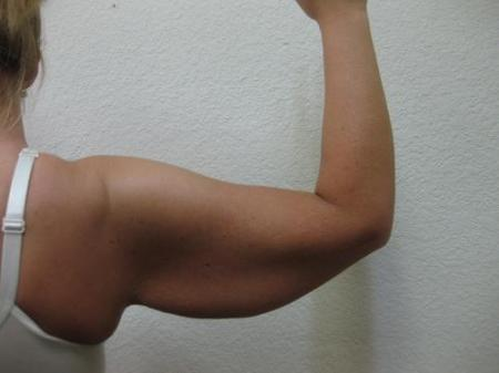 Arm Lift Surgery - Patient 1 - Before Image 3