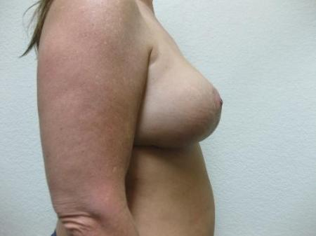 Breast Reduction - Patient 3 -  After Image 3