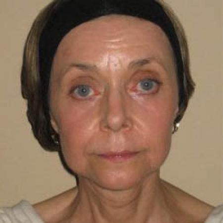 Facelift - Patient 2 -  After Image 4
