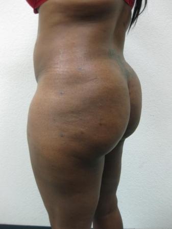 Brazilian Butt Lift - Patient 2 -  After Image 4