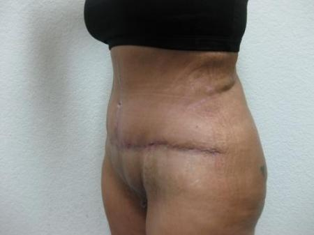 Tummy Tuck - Patient 3 -  After Image 2