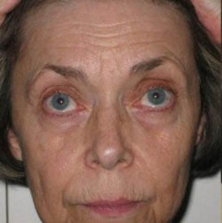 Facelift - Patient 2 - Before Image 6