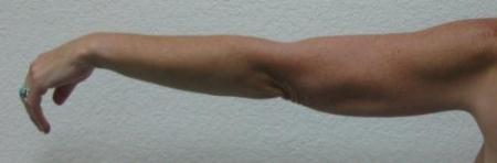 Arm Lift Surgery - Patient 3 -  After Image 3