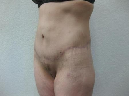 Body Lift - Patient 8 -  After Image 8
