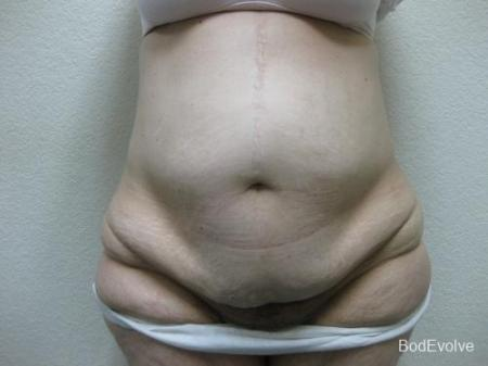 Patient 4 - Cosmetic Surgery After Massive Weight Loss - Before Image 1