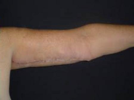 Arm Lift Surgery - Patient 2 -  After Image 1