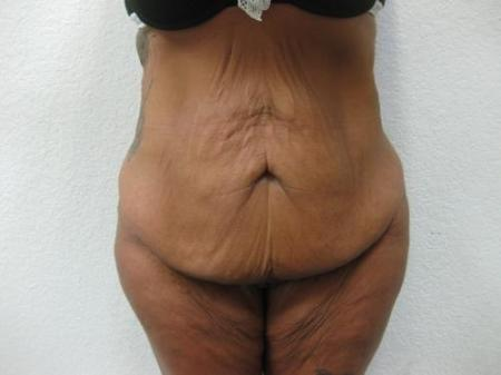Tummy Tuck - Patient 3 - Before Image 1