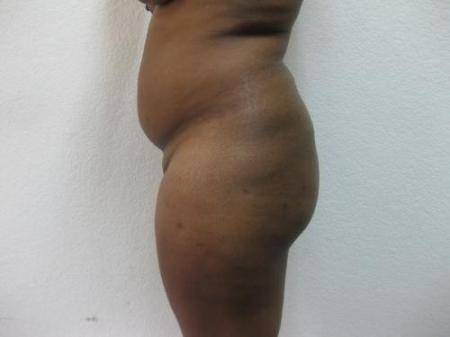 Brazilian Butt Lift - Patient 2 - Before Image 1