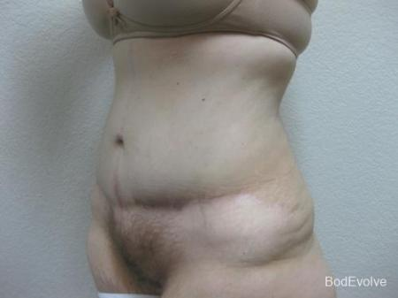 Patient 4 - Cosmetic Surgery After Massive Weight Loss -  After Image 2