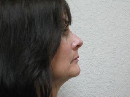 Lip Augmentation - Patient 2 - Before Image 3