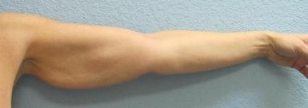 Arm Lift Surgery - Patient 3 - Before Image 8