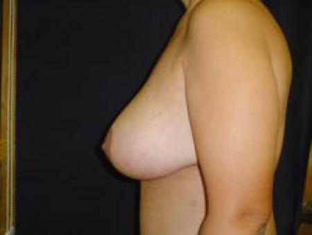 Breast Augmentation with Lift - Patient 9 -  After Image 3
