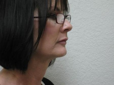 Lip Augmentation - Patient 2 -  After Image 2