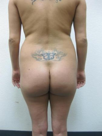 Brazilian Butt Lift - Patient 3 - Before Image 1