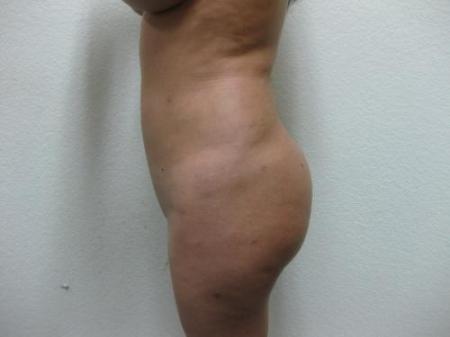 Brazilian Butt Lift - Patient 3 - Before Image 3