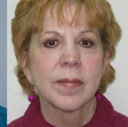 Facelift - Patient 1 -  After Image 3