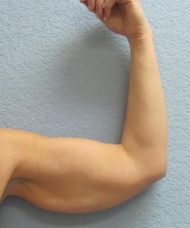 Arm Lift Surgery - Patient 3 - Before Image 1