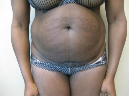 Tummy Tuck - Patient 5 - Before Image 1