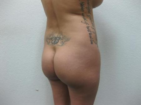 Brazilian Butt Lift - Patient 3 - Before Image 6