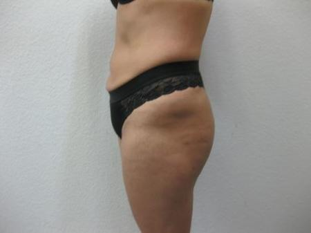 Brazilian Butt Lift - Patient 4 -  After Image 4