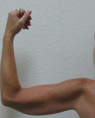 Arm Lift Surgery - Patient 3 -  After Image 6