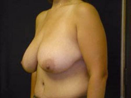 Breast Augmentation with Lift - Patient 9 - Before Image 2