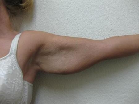 Arm Lift Surgery - Patient 1 - Before Image 2