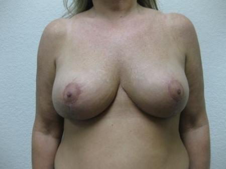 Breast Reduction - Patient 3 -  After Image 1