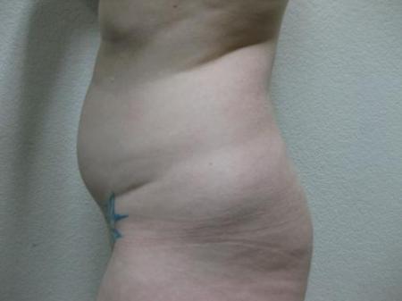 Liposuction - Patient 5 - Before Image 5