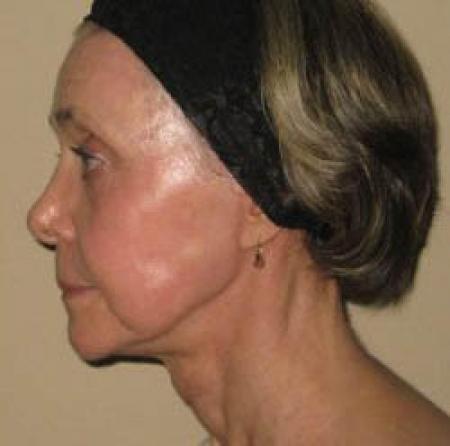 Facelift - Patient 2 -  After Image 1