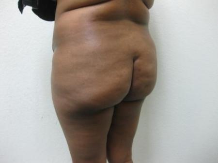 Brazilian Butt Lift - Patient 5 - Before Image 3