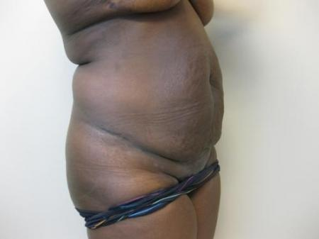 Tummy Tuck - Patient 5 - Before Image 4