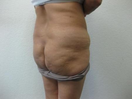 Brazilian Butt Lift - Patient 4 - Before Image 2