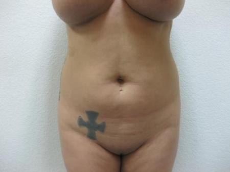 Brazilian Butt Lift - Patient 3 - Before Image 2