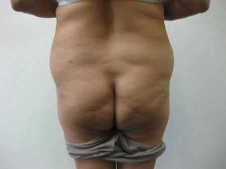 Brazilian Butt Lift - Patient 4 - Before Image 1