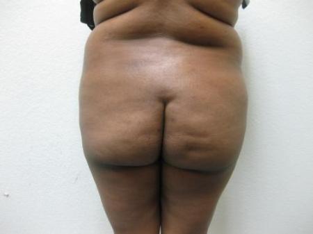 Brazilian Butt Lift - Patient 5 -  After Image 1