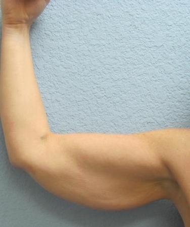 Arm Lift Surgery - Patient 3 - Before Image 5