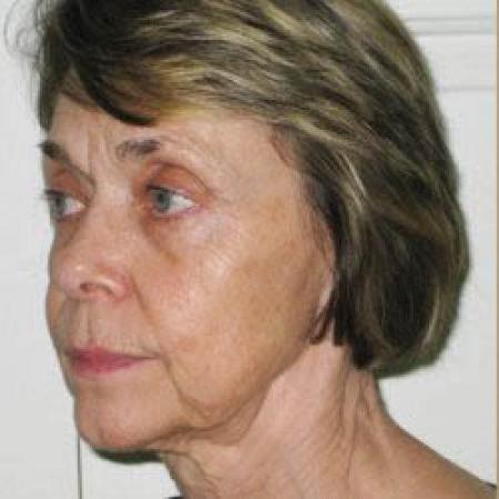 Facelift - Patient 2 - Before Image 3