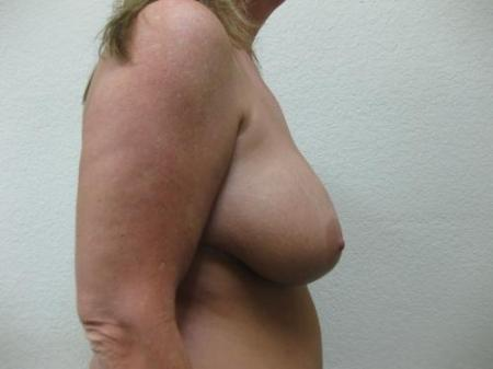Breast Reduction - Patient 3 - Before Image 3